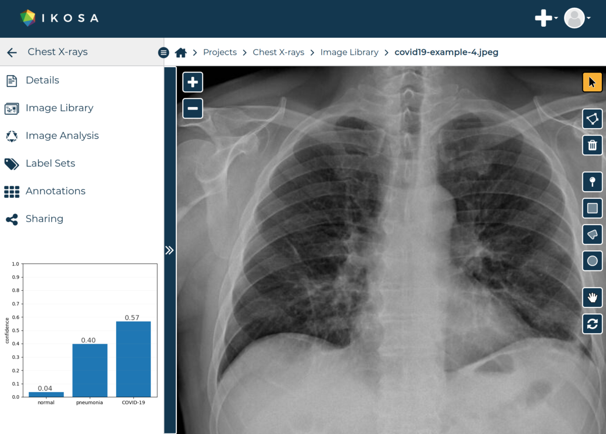 Screenshots of KML Vision's online platform IKOSA® and an analyzed chest X-ray.